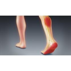 Неудобните обувки: водят до деформация на стъпалото и какво още?